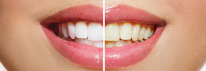 teeth whitening woodbridge va